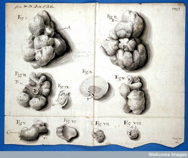 Lucas, Kidney stones image